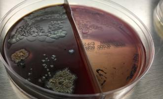 artwork from Kathy High depicting a petri dish with microbes